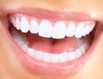 Cum pot fi albiti dintii?