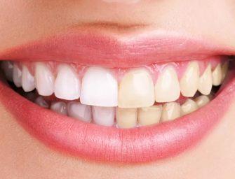 Tot ce trebuie sa stim despre albirea dentara